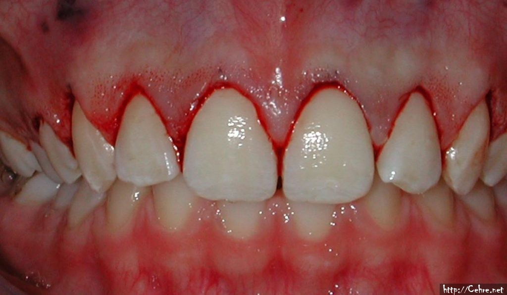 Diş Eti Çekilmesi Nasıl Önlenir?