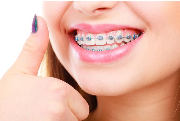 Ortodonti ile Çapraşık Dişlere Son!