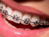 Diş Teli Takanlar