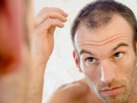 Saç ekimi ve Türkiye