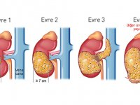Özel Akhisar Hastanesi bilgilendiriyor; Böbrek tümörleri