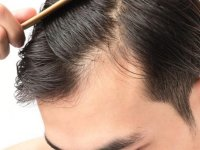 Saç Dökülmesine Karşı Şampuan