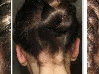 Akhisar'da ilk kepçe kulak ameliyatı gerçekleştirildi