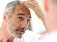 İstanbul'da En İyi Saç Ekim Merkezi Hangisi? Saç Ekim Fiyatları